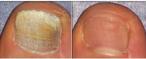 Toe Nail Fungus Before/After Laser Treatment